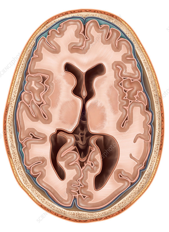 Transverse Section of the Brain