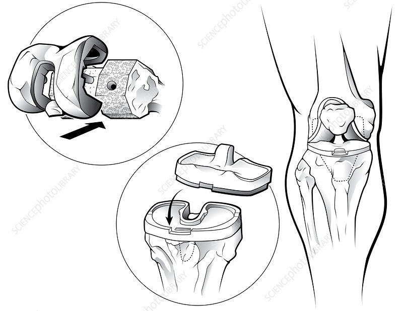 Total Knee Replacement (Prosthetic)