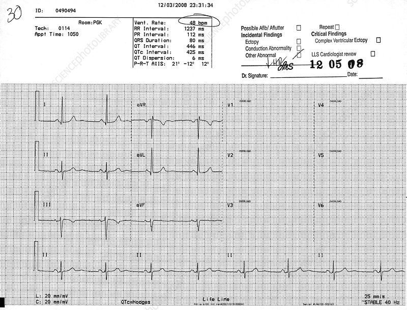 Normal EKG with High Blood Pressure