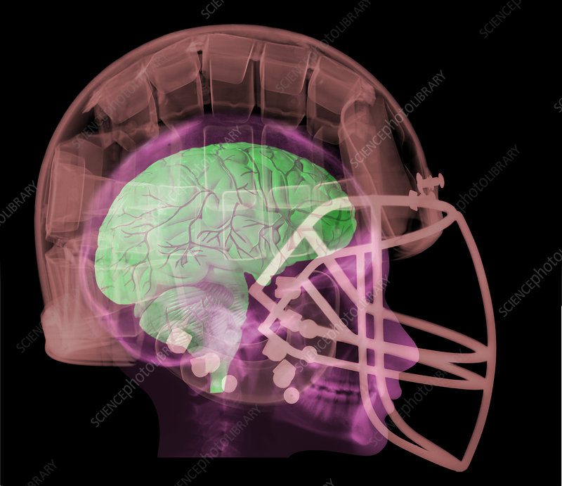 X-ray of Head in Football Helmet