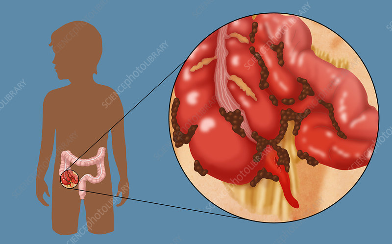 Ruptured Appendix - Stock Image C022/1266 - Science Photo Library