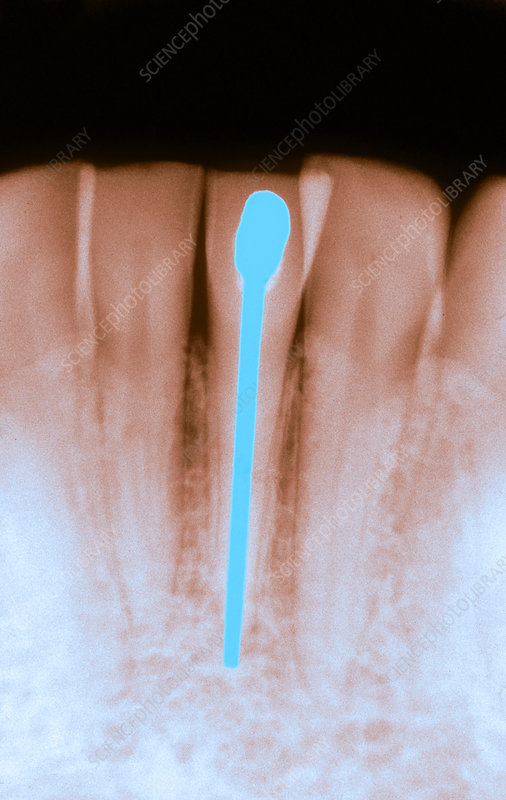 Root Canal Filling, X-ray