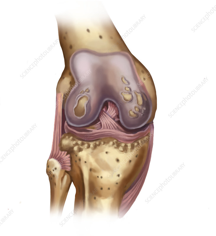Osteoporosis of the Knee