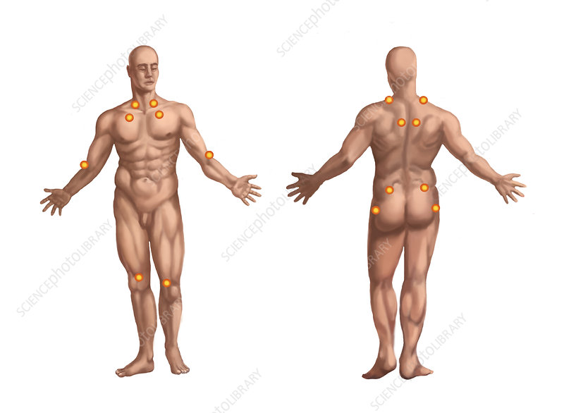 Trigger Points on the Nude Man