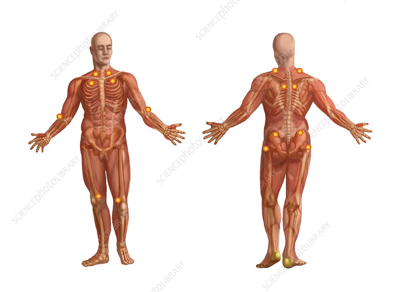 Trigger Points on the Human Body