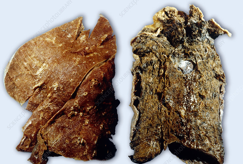 Nonsmoker's and Smoker's Lungs