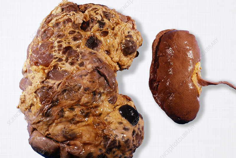 Polycystic and Normal Kidneys