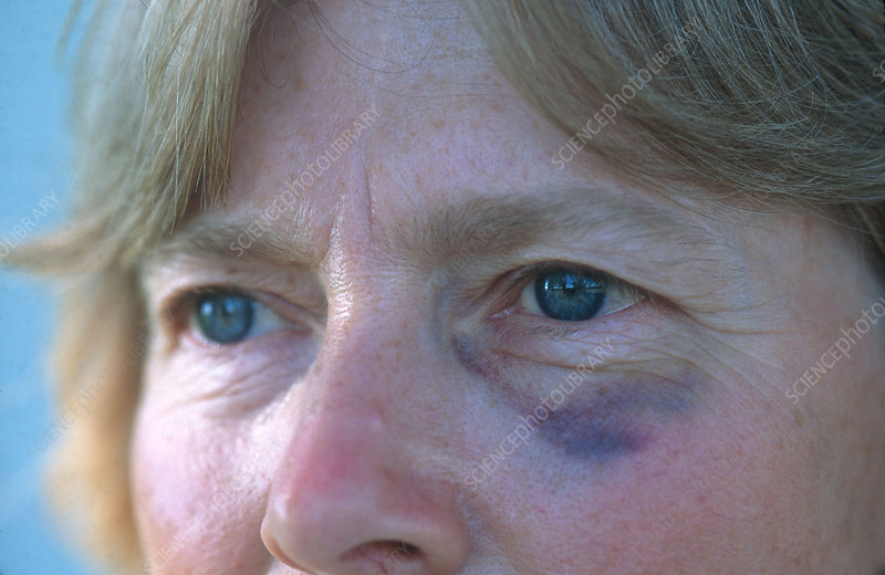 Woman with Black Eye