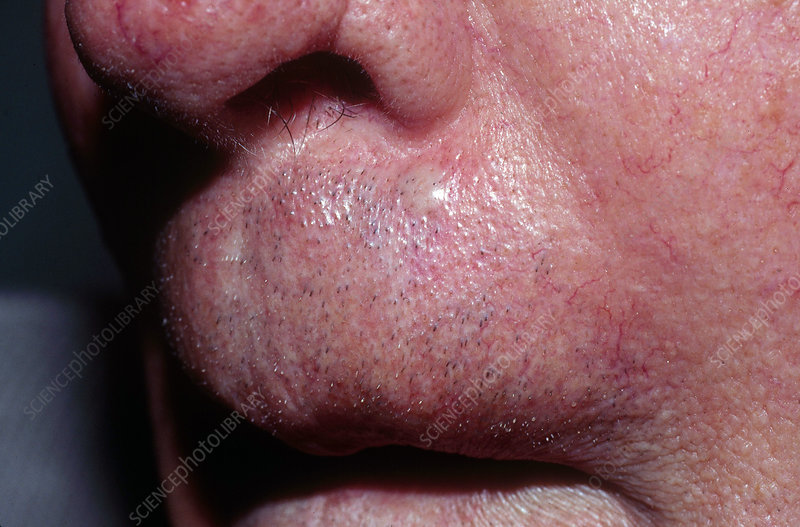 Basal Cell Carcinoma Above Lip Stock Image C022 2113 Science Photo Library
