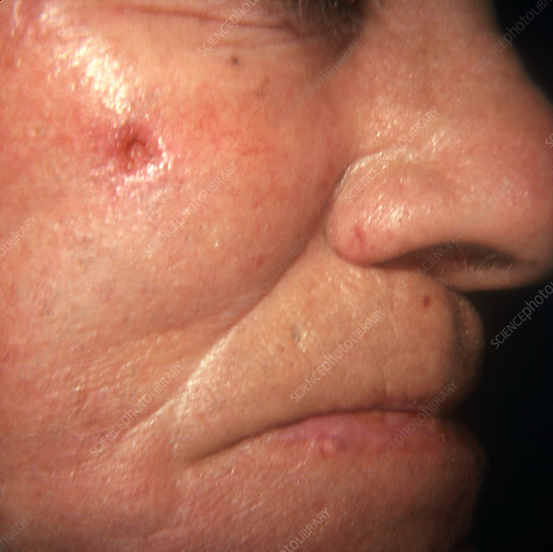 Rodent Ulcer on Patient's Cheek