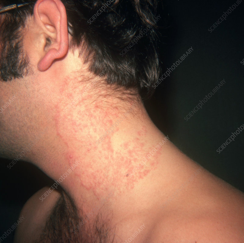 Ringworm on Neck