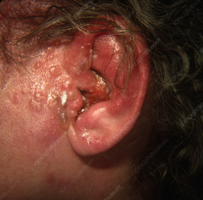 Herpes Zoster on Ear