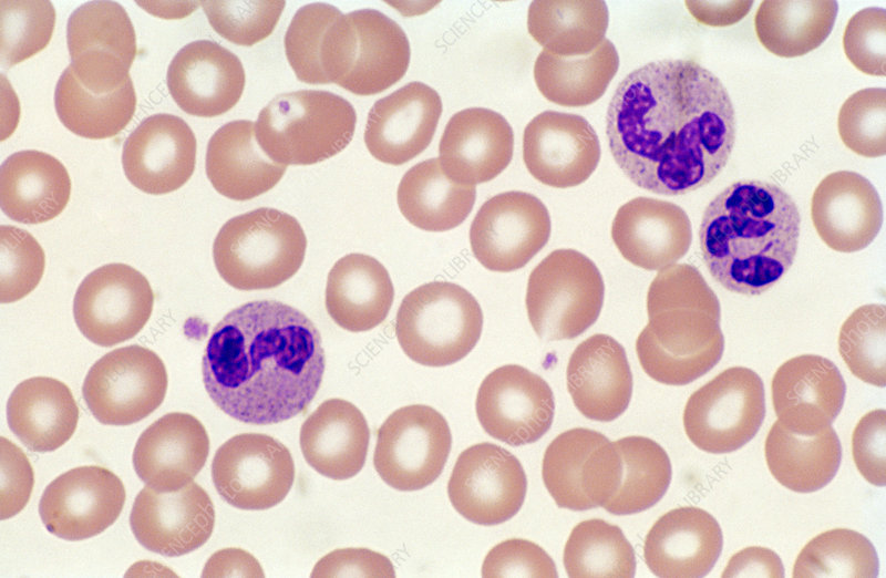 Blood Smear with Neutrophils (LM)