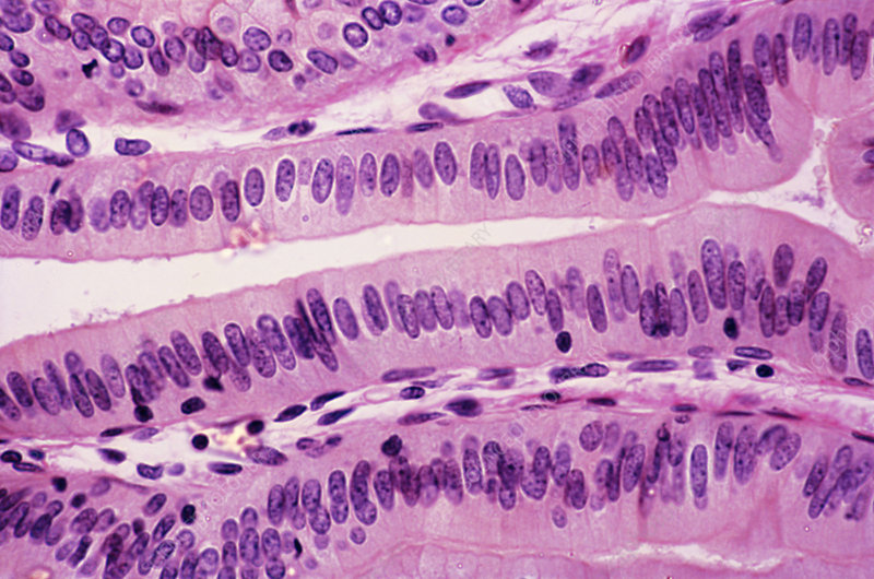 Simple Columnar Epithelium (LM)