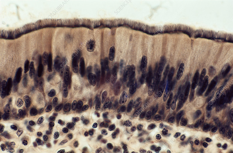 Ciliated Columnar Epithelium (LM)