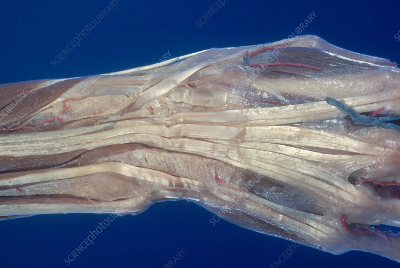 Extensor Tendons of Hands