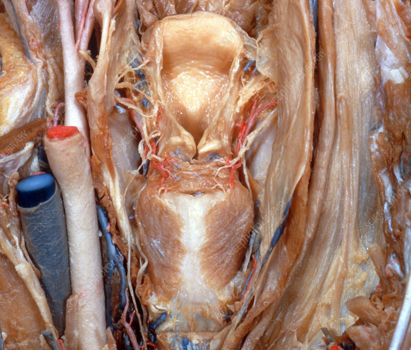 Dissected Larynx