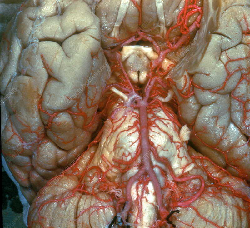 Arteries at Base of Brain
