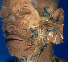 Dissection of Face