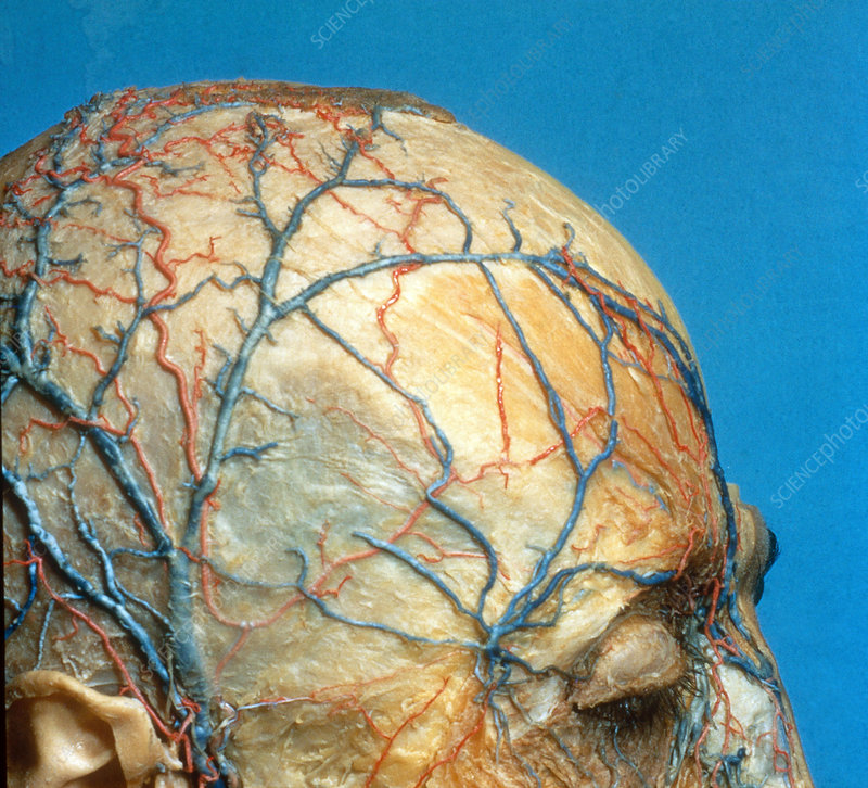 Nerves and Blood Vessels on Scalp - Stock Image C022/2273 - Science ...
