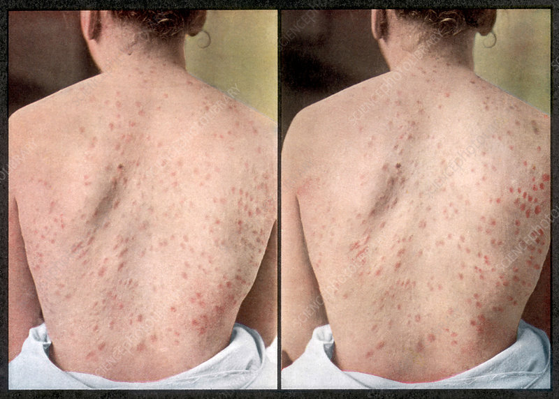 Rash Caused by Syphilis