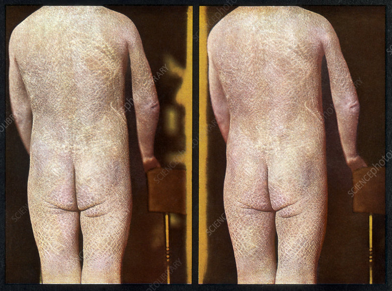 Ichthyosis, Vintage Stereoscopic Image