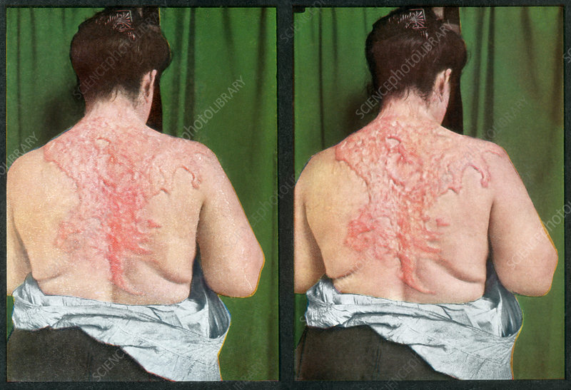 Keloidal Scar, Vintage Stereoscopic Image
