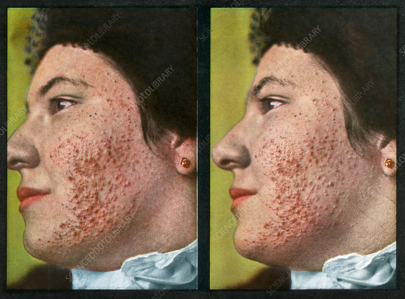 Acne, Vintage Stereoscopic Image