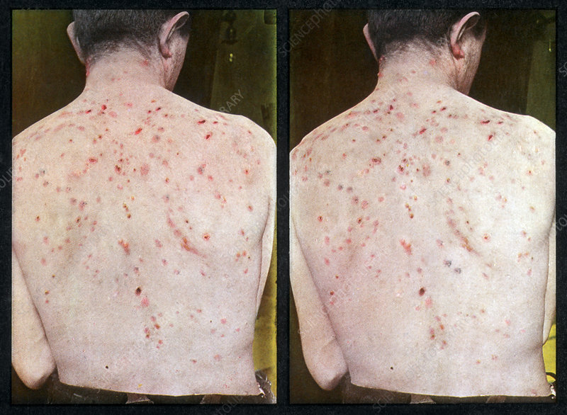 Cystic Acne, Vintage Stereoscopic Image
