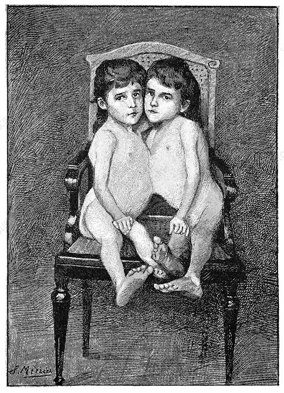 Conjoined twins, early 20th century