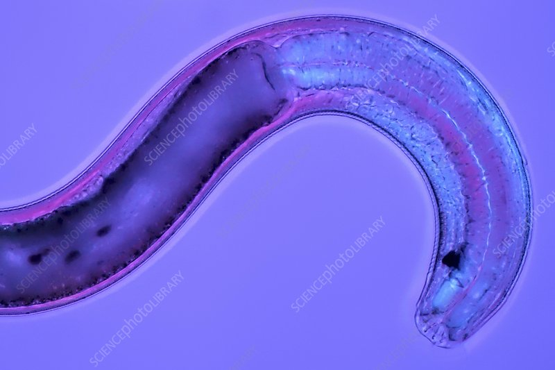 Nematode, light micrograph