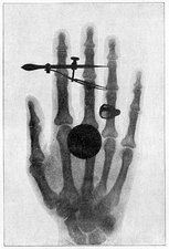 Female hand, 19th Century X-ray