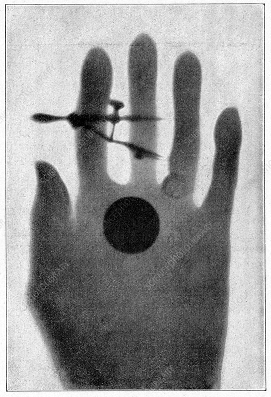 Female hand, 19th Century radium ray