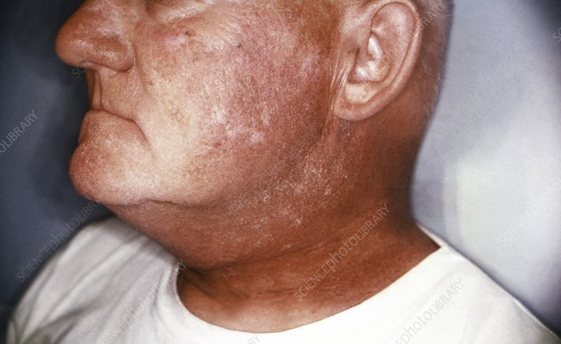 Radiation dermatitis of the face