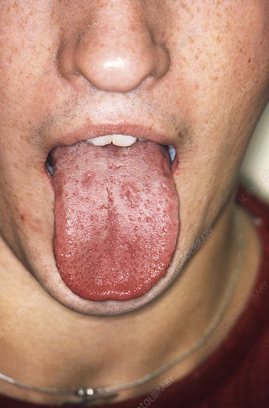 Syphilis in the mouth