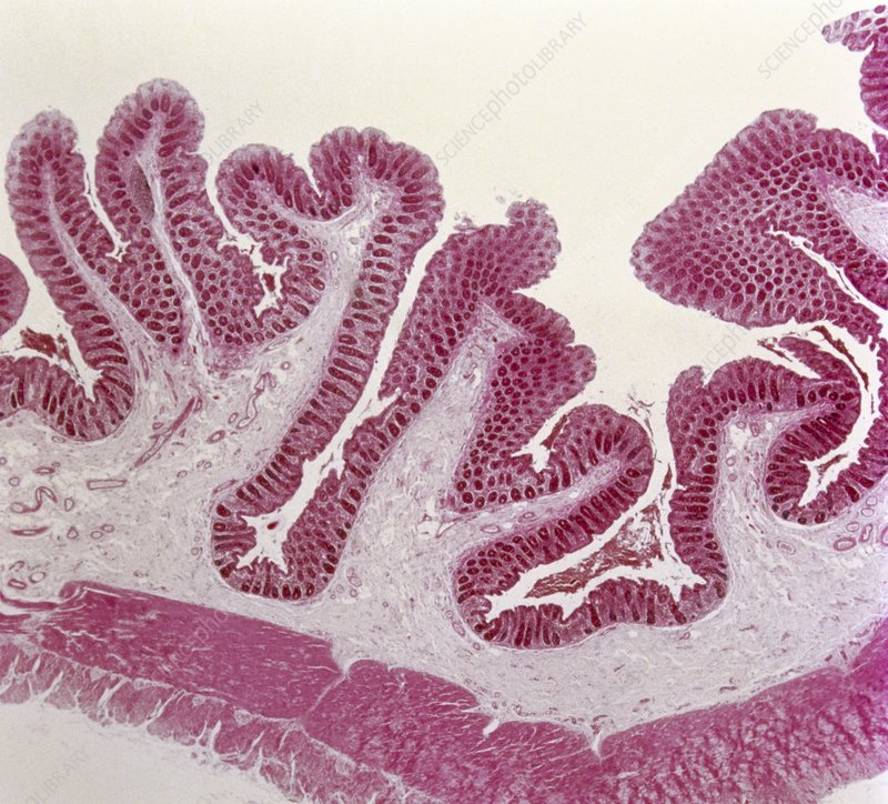 Intestinal villi, light micrograph