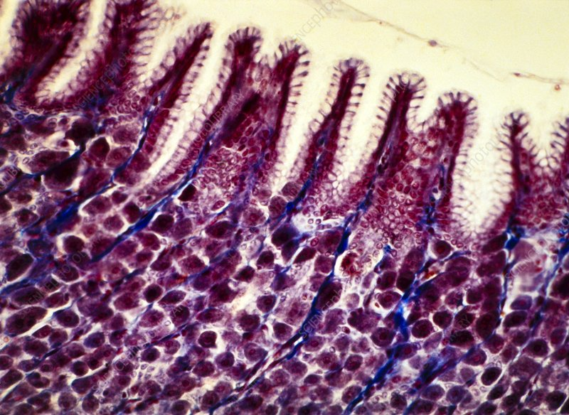 Stomach lining, light micrograph