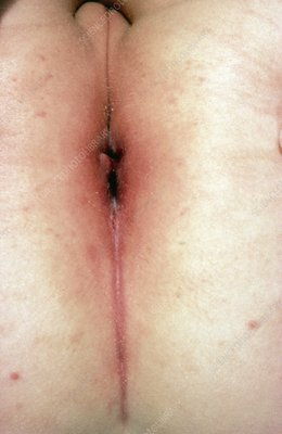 Swollen anus in Crohn's disease