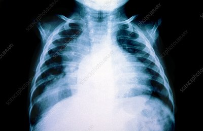 Hiatus hernia in a child, X-ray