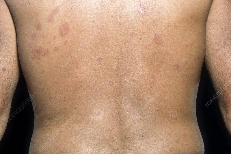Skin plaques in systemic sclerosis