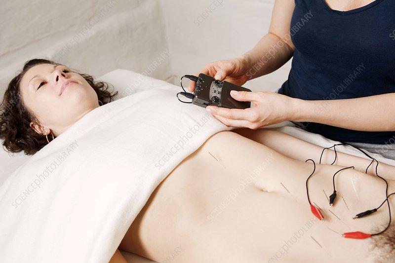 Electroacupuncture fertility treatment