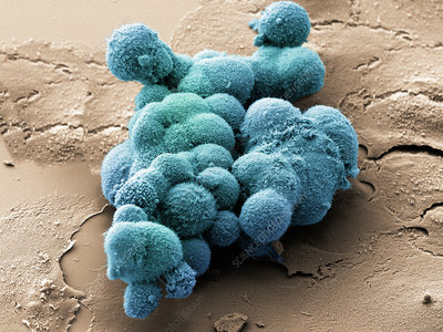 Cluster of pancreatic cancer cells