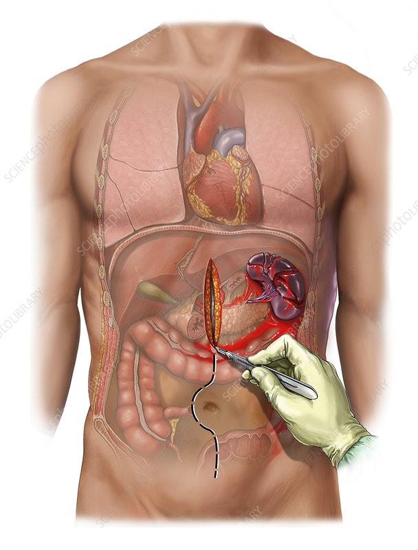 what happens if the spleen ruptures
