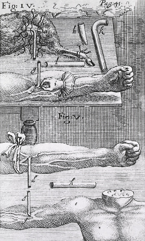 Animal-human blood transfusion, 1660s