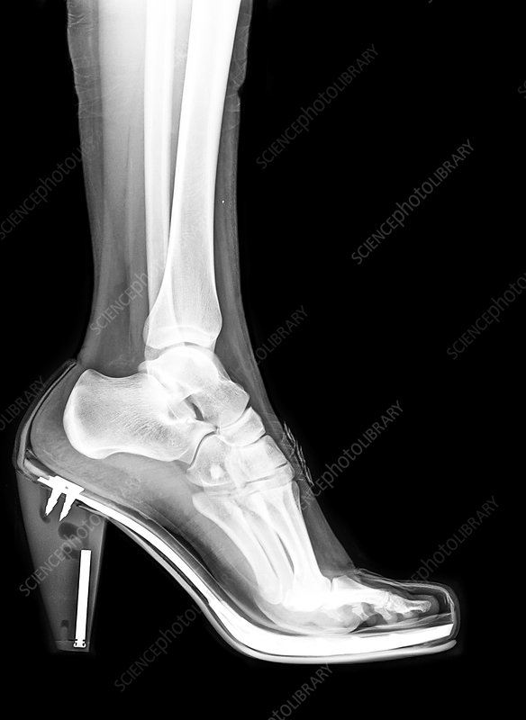 high heel shoe X-ray