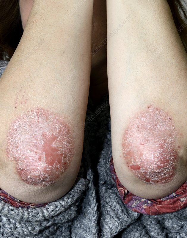 Psoriasis of the elbows