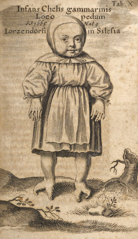 Deformed child, 17th century artwork