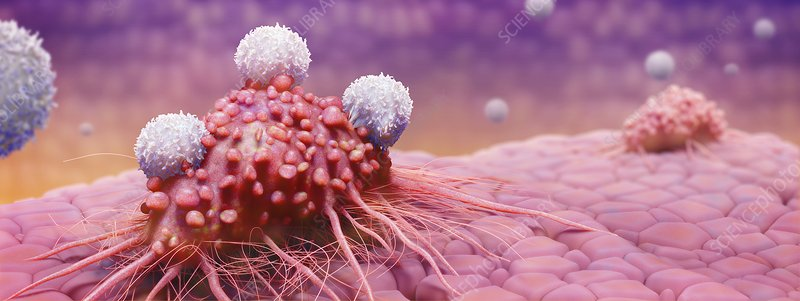 T-cells attacking cancer cell, artwork