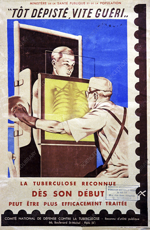 Tuberculosis screening, illustration