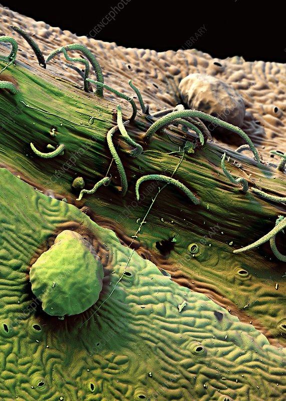 Redcurrant leaf trichomes, SEM
